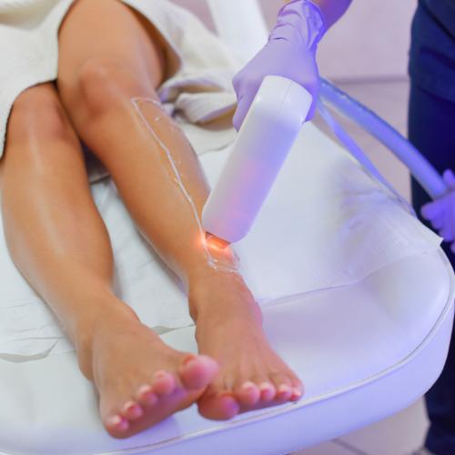 Depilacja Laserowa: Podstawy Zabiegowe Procesu